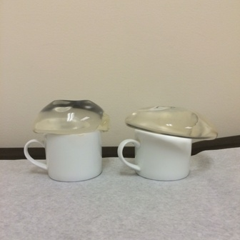 Breast_Implant_Cup_Size-__Breast_Implants_in_Cups_-_Dr._Roy_Kim_San_Francisco_1