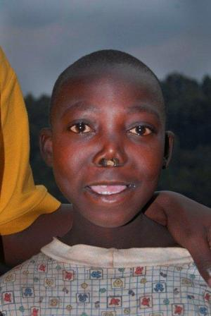 Jean_Claude_Pre_Op_Rwanda