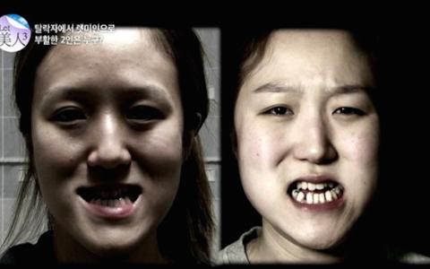 Korean_Plastic_Surgery-__Twins_Before