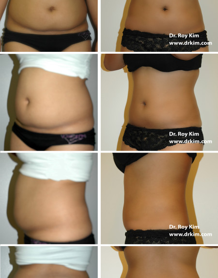 Patient 49-After Lipo 2_all