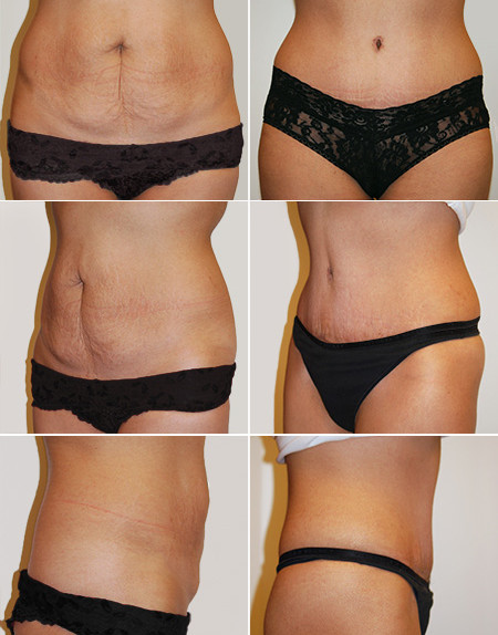 abdominoplasty_03