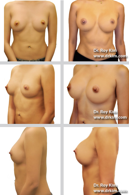 Breast Augmentation Revision, Silicone Implants, 450cc