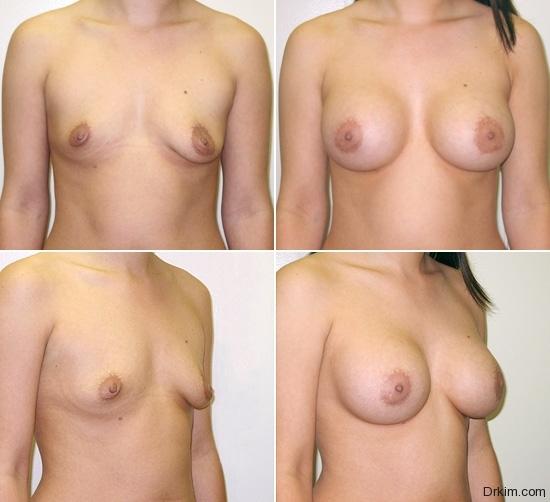 breast-augmentation-02
