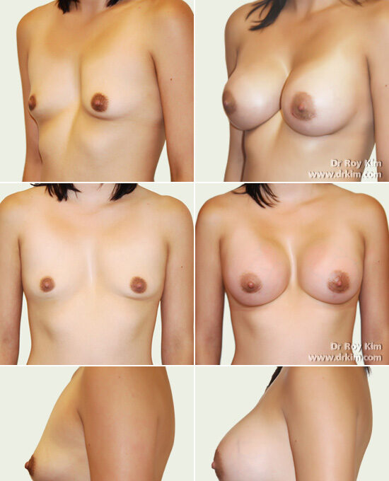 breast-augmentation-23
