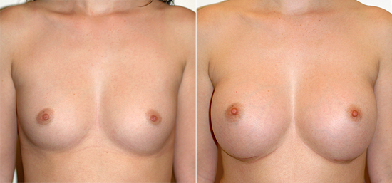 breast-augmentation-24a
