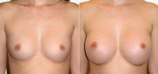 breast-augmentation-24a