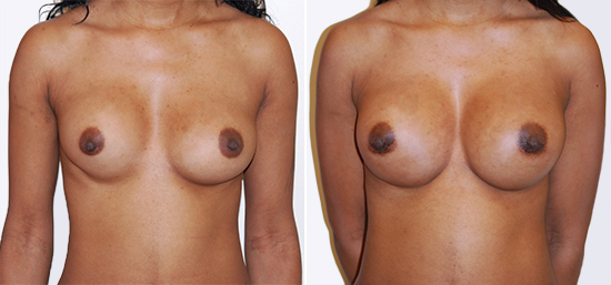 breast-augmentation-28-a-highprofile-silicone-400cc