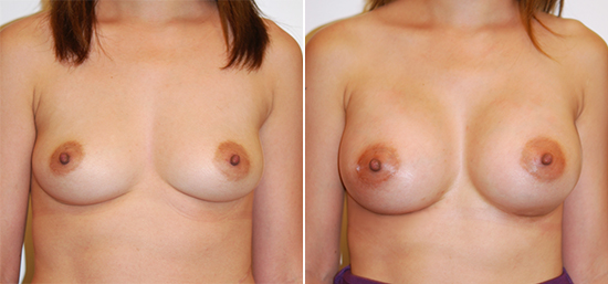 breast-augmentation-29-a-moderate-silicone-350cc