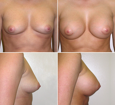 breast_augmentation_01_1