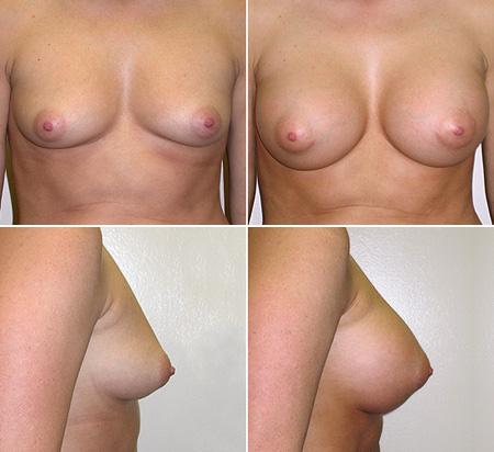 breast_augmentation_01_1
