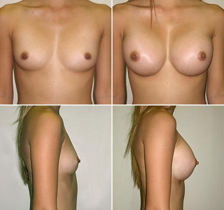 breast_augmentation_08