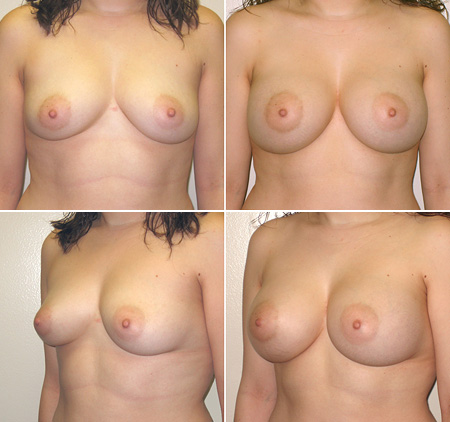 breast_augmentation_09