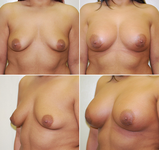 breast_augmentation_11