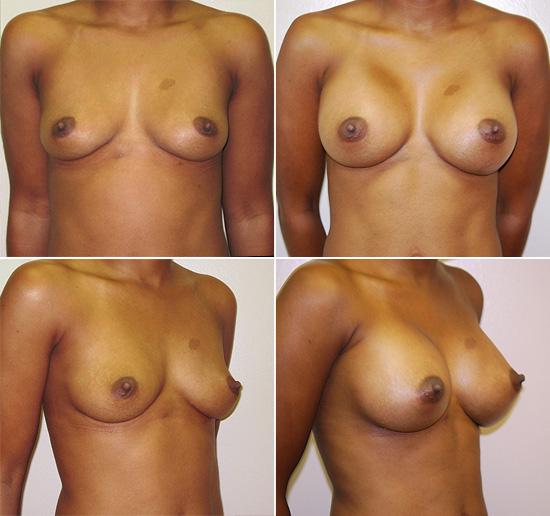 breast_augmentation_12