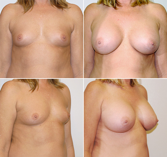 breast_augmentation_13