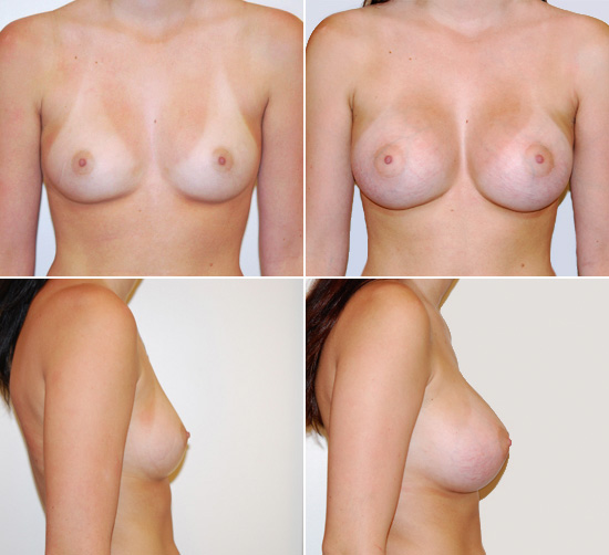 breast_augmentation_14