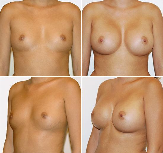 breast_augmentation_15