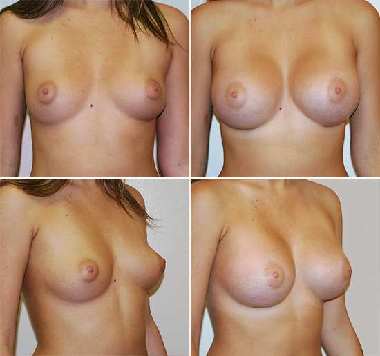 breast_augmentation_17