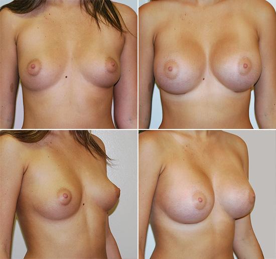 breast_augmentation_17