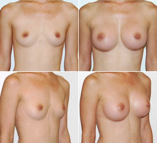 breast_augmentation_18