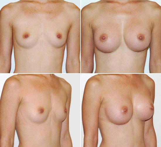 breast_augmentation_18