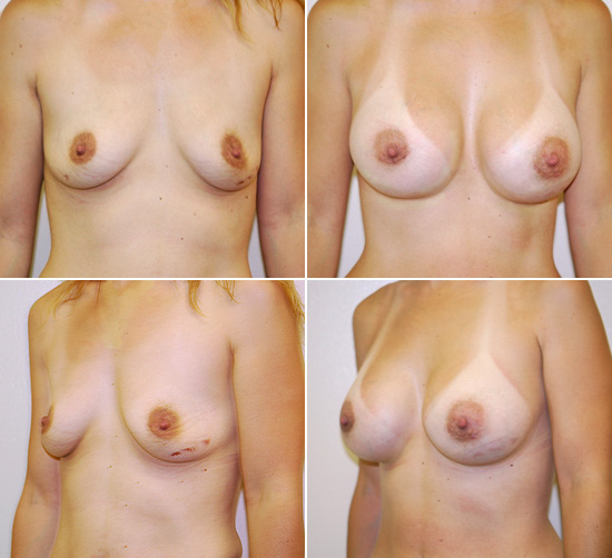 breast_augmentation_19