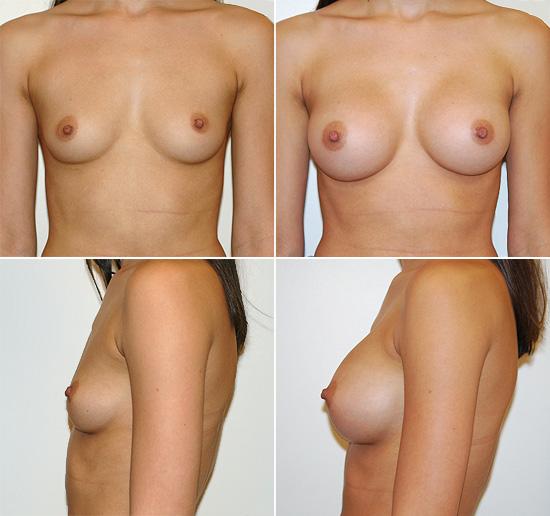 breast_augmentation_20