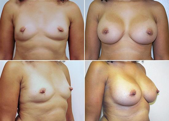 breast_augmentation_21