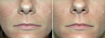 juvederm_nasolabial_folds_01_display