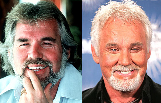 kenny-rogers-facelift