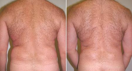 liposuction_male_01