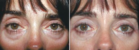 lower_eyelid_bags_01