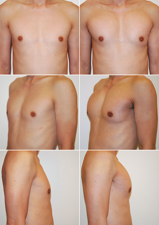 male-breast-augmentation-01
