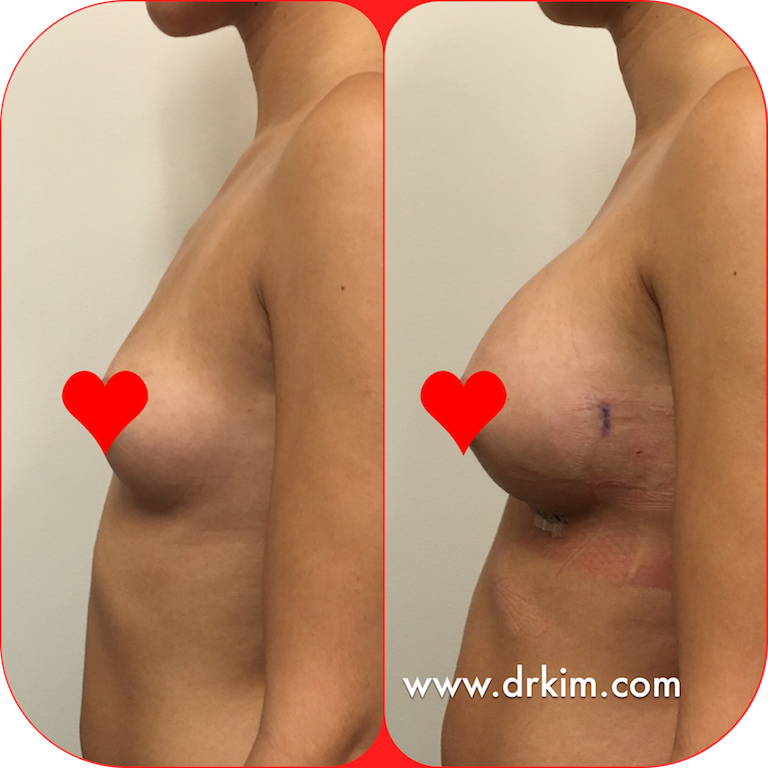 Breast Augmentation, Before and After, 255 cc, Moderate Classic