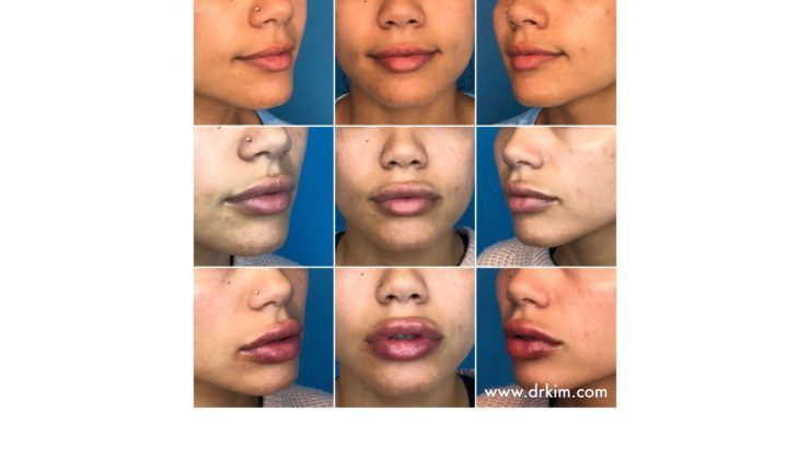 How Many Syringes of Dermal Filler Should You Get in Your Lips